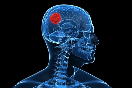 hjerne cancer
