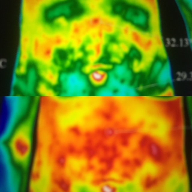 Before and after. - Bottom shows thermography showing aggressive gut flora. Top image shows 6 months later: all inflammation cleared up and relapse for primary diagnosis of cancer drastically reduced.