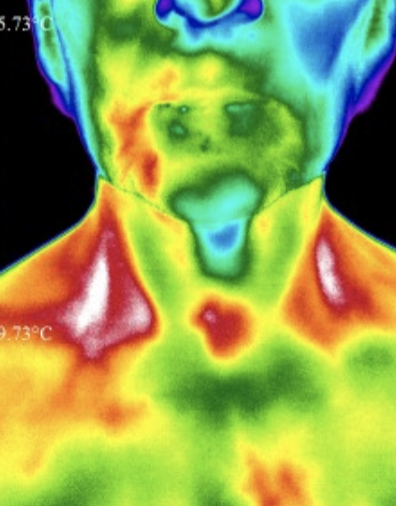 Dental inflammation - in right side of thermography you can see inflammation in relation to root canals done. Teeth affect the entire body's health, why it is critical to treat chronic inflammation and bacteria infection as it often occurs in mercury fillings and root canals. This goes undetected by dental x-ray and symptoms often become systemic with time - affect the immune system and our ability to fight off disease.