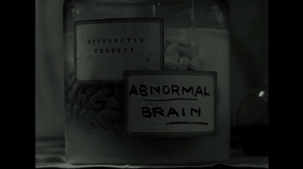 Was Alzheimer's always viewed with irrational fear? Carper's movie shows it was not–and should not be. -