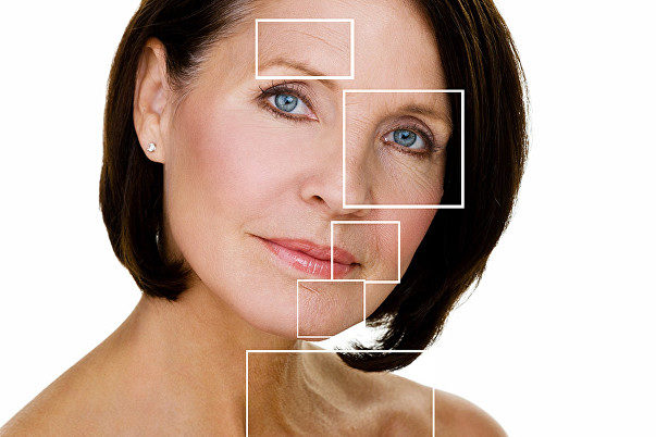 ANTI-WRINKLE INJECTIONS (BOTOX) | BOTOX BRIGHTON & HOVE | FROWN