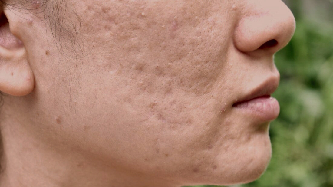 SCAR REMODELLING &ACNE SCARRING SPECIALISTS -
