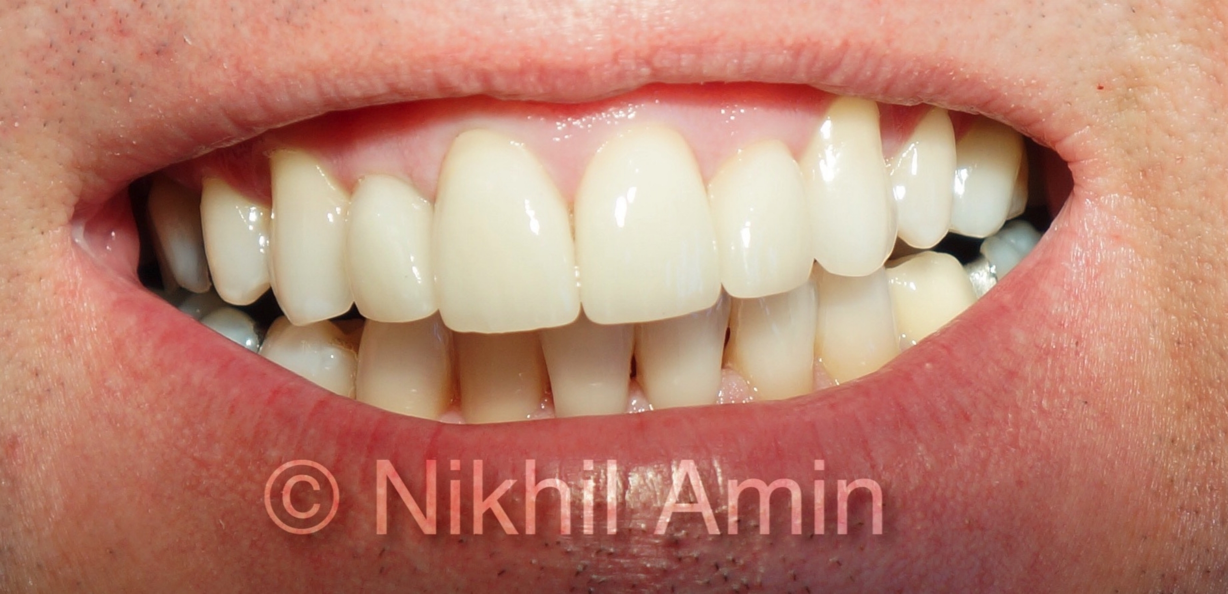 Aftre Treatment Teeth