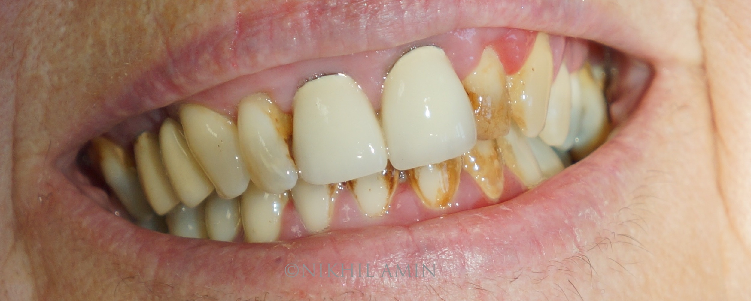 Before Treatment Teeth