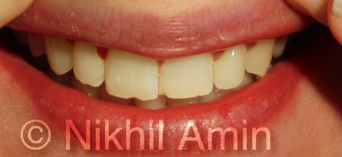 After Treatment Teeth