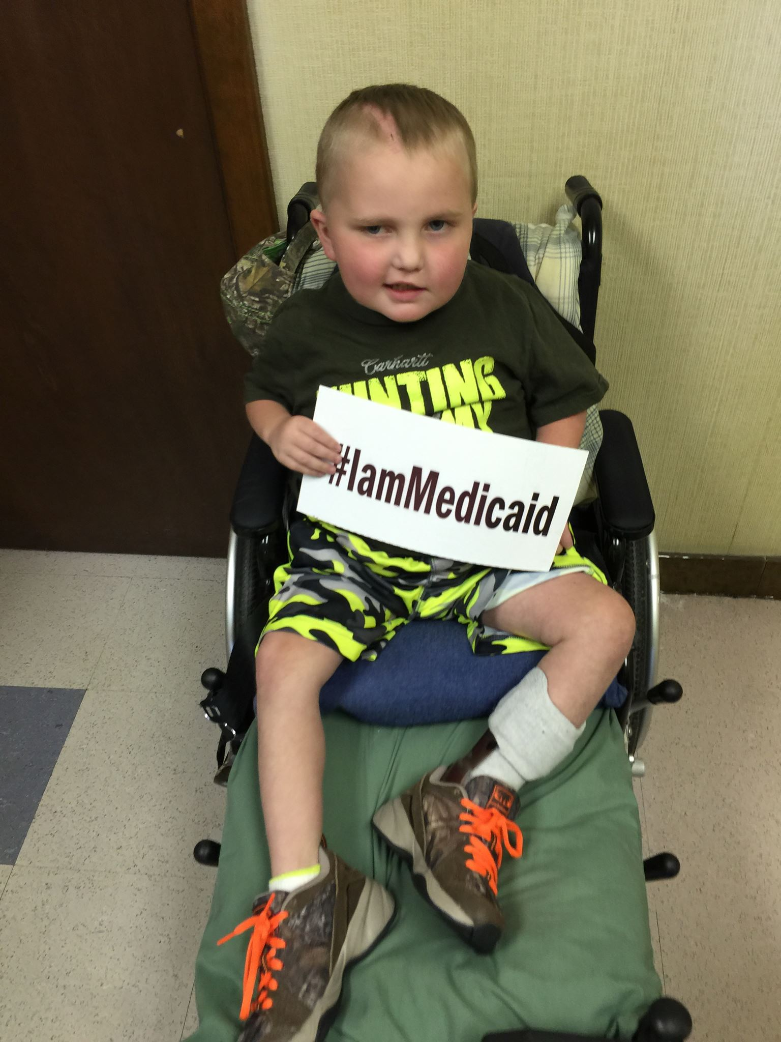 I have Hirschsprungs Syndrome, short-gut and am recovering from brain surgery after having a CNS infection. I am doing great now thanks to Medicaid! ‪#‎IamMedicaid