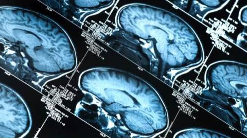 Brain Scan Photo.jpeg