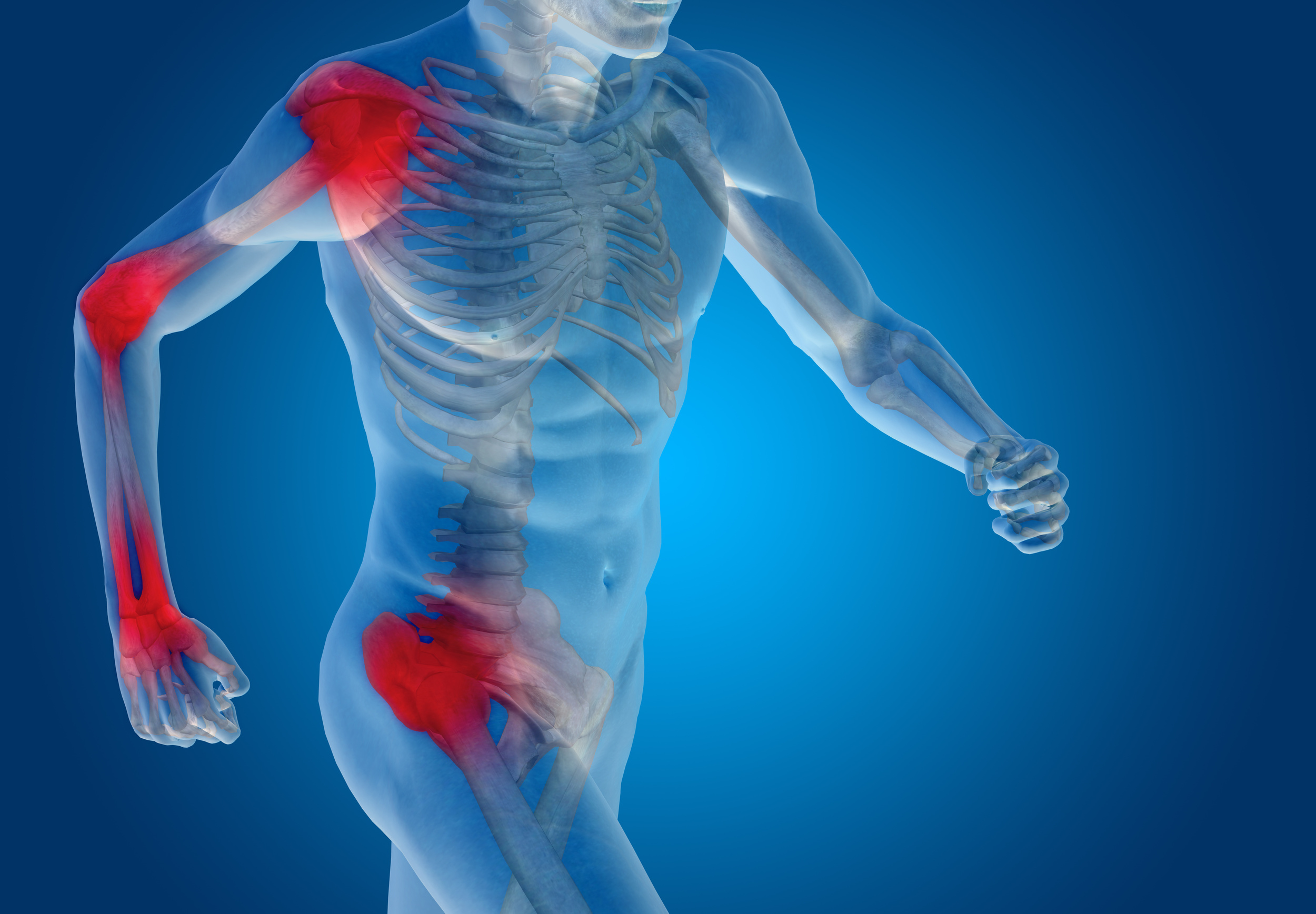 joint pain.jpg