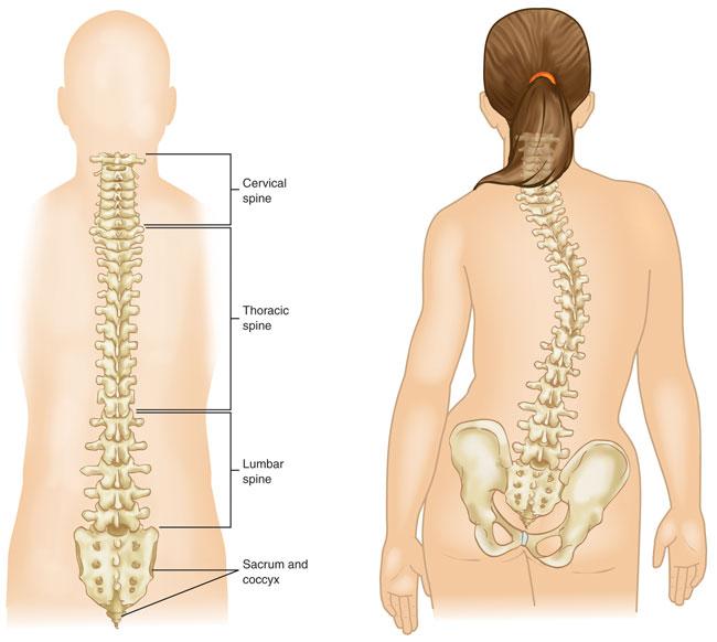 scoliosis spine.jpg