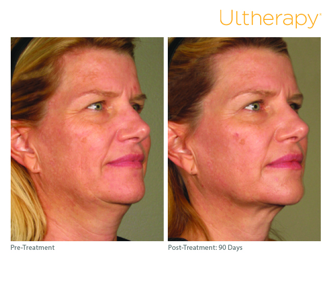 ultherapy-0283j-r_before-90daysafter_full.jpg