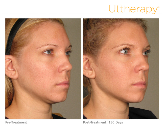 ultherapy-p011_before-180days_full.jpg