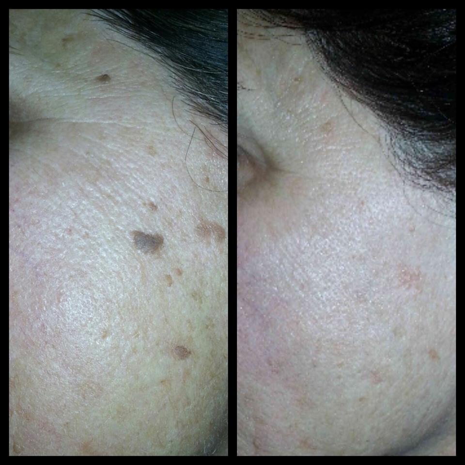 skin-classic-12.jpg