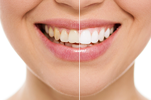 DENTAL FILLINGS & RESTORATION