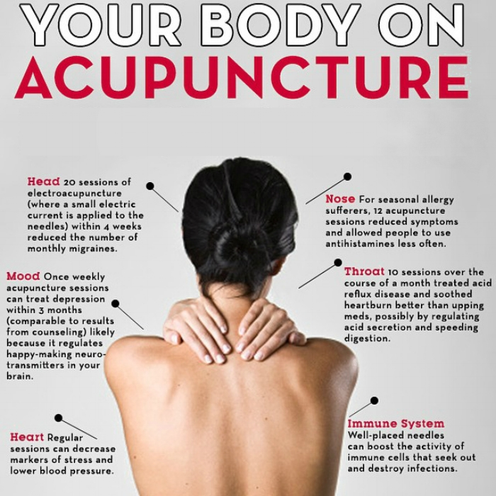 your body on acupuncture.jpg