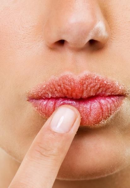 chapped-lips copy.jpg