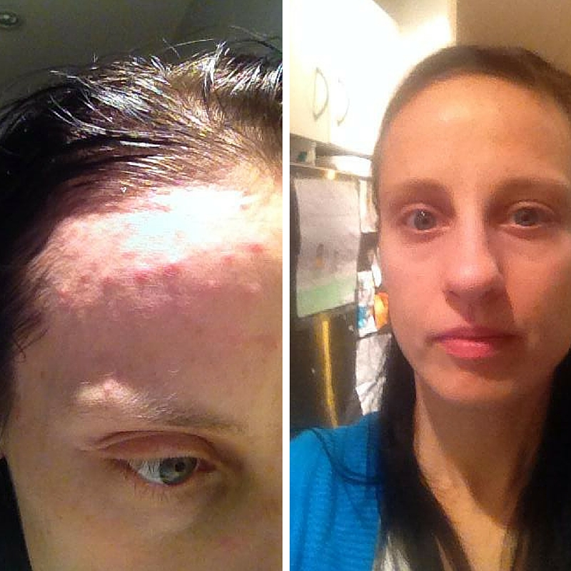 Before and after Delicious Skin natural skincare