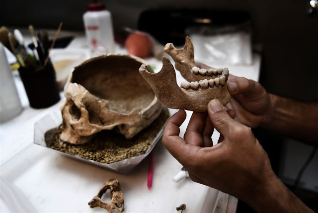 A conservator of archaeological works on a human skull in a lab at the American School    of Archaeology in Athens on July 7, 2017 [Credit: Aris Messinis/AFP]