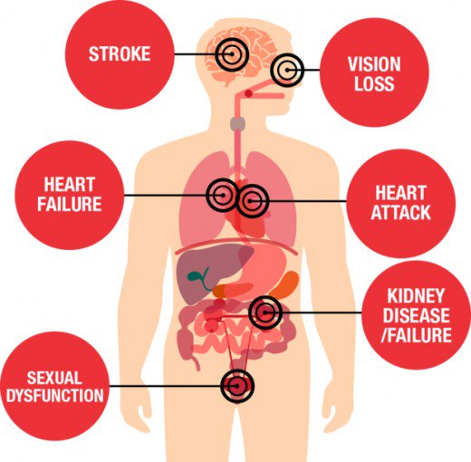 The Risks of Hypertension Are Numerous And Serious, Too!