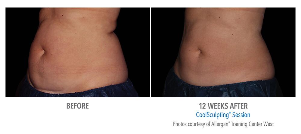 coolsculpting-abdomen-women-B-A.jpg