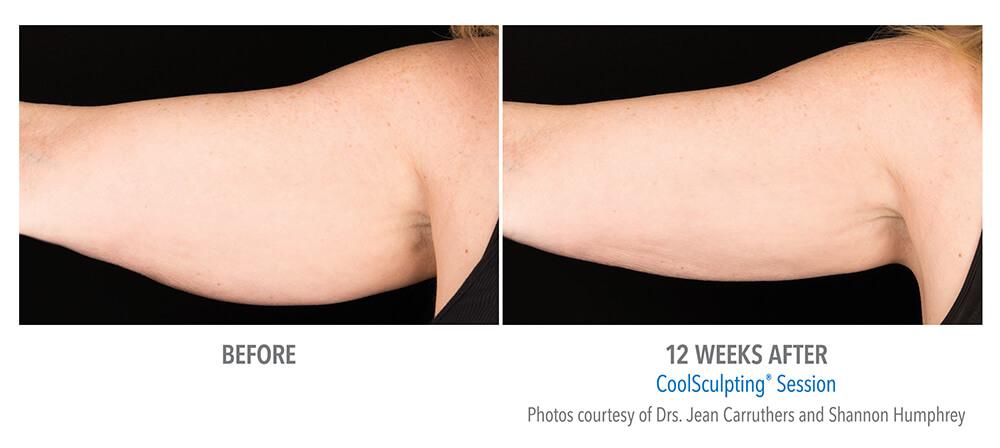 coolsculpting-arm-women-B-A.jpg