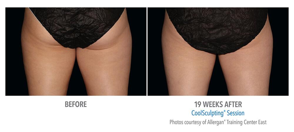 coolsculpting-thigh-women-B-A.jpg