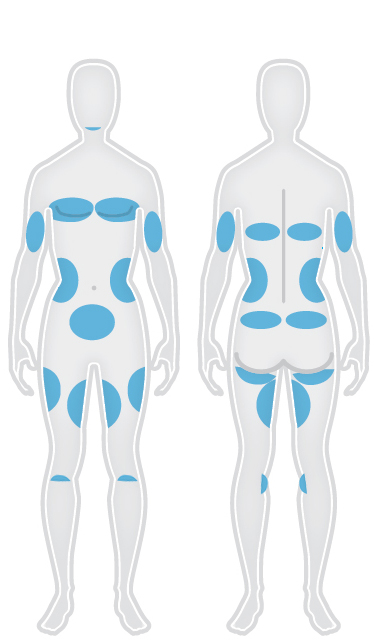 Areas that can be treated with CoolSculpting®