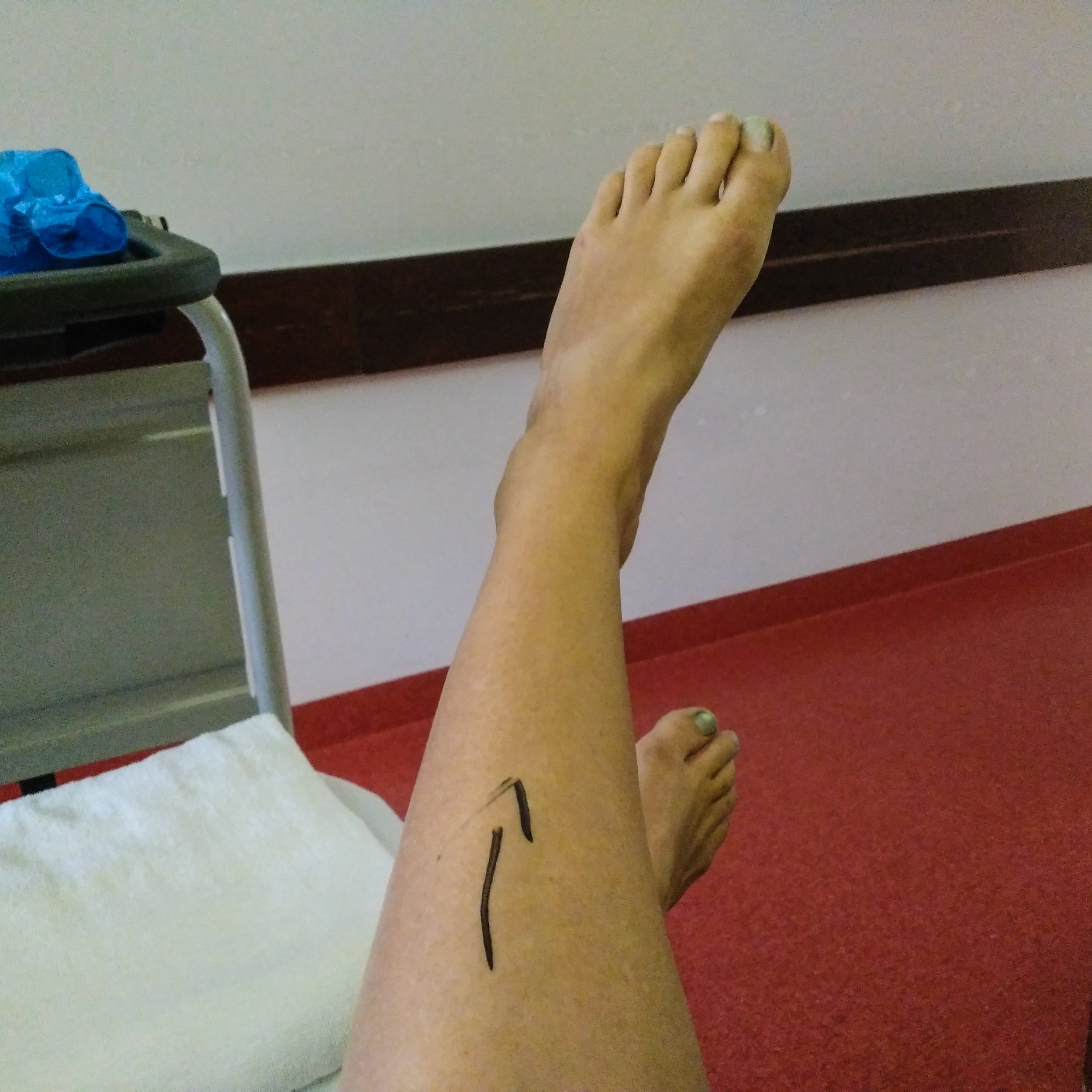 Waiting to get wheeled away. Every person questioned what foot and they kindly drew this arrow on my left leg.