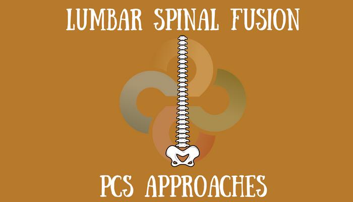 Lumbar-Spinal-Fusion-PCS-HRG-blog