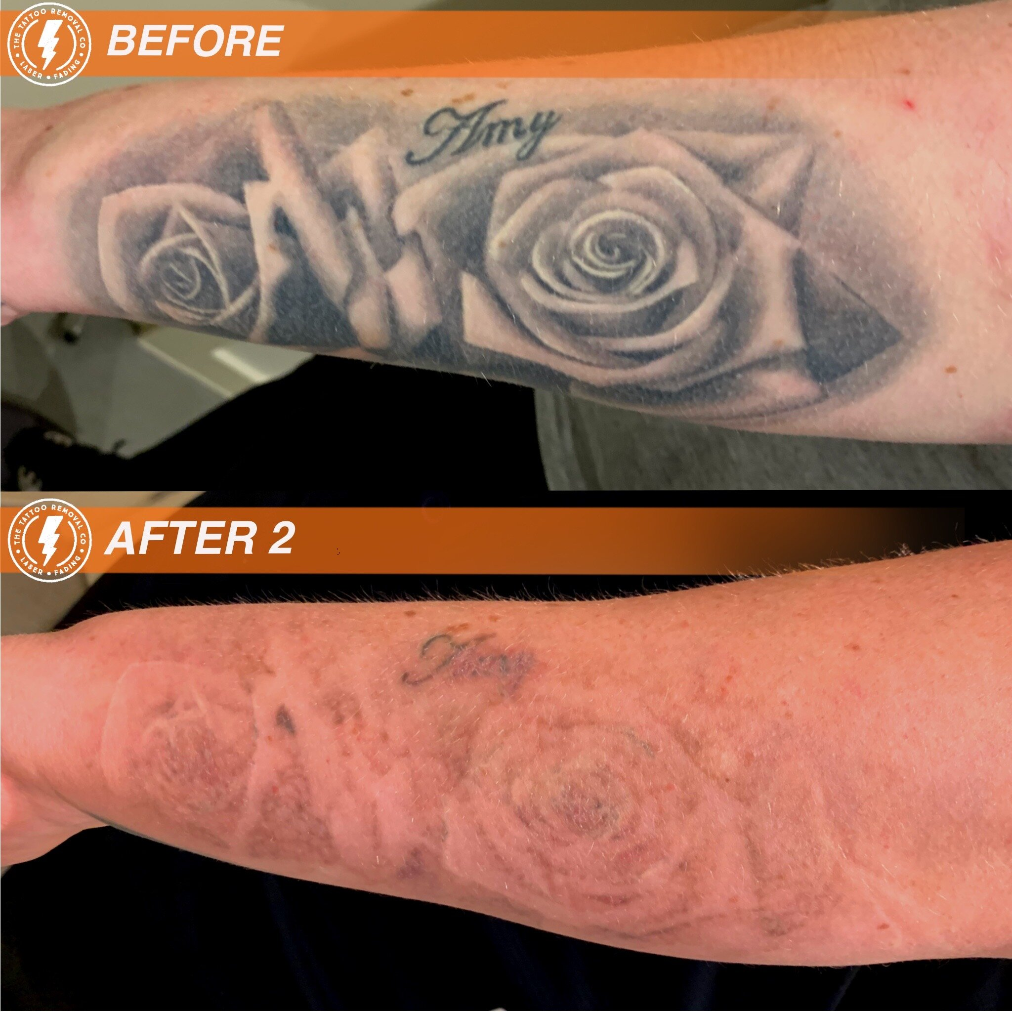 Laser Tattoo Removal Perth