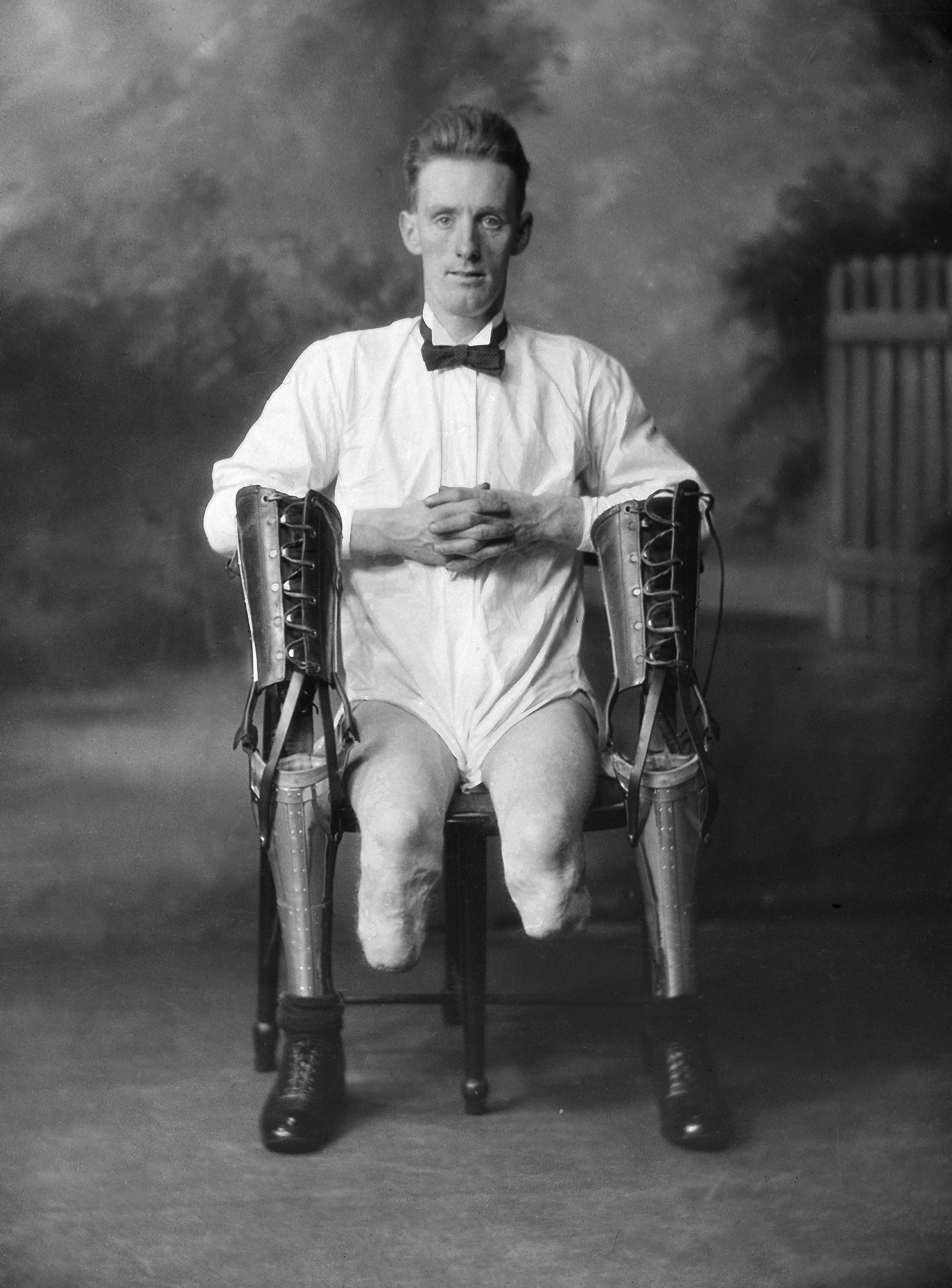 The same man seated with his legs off