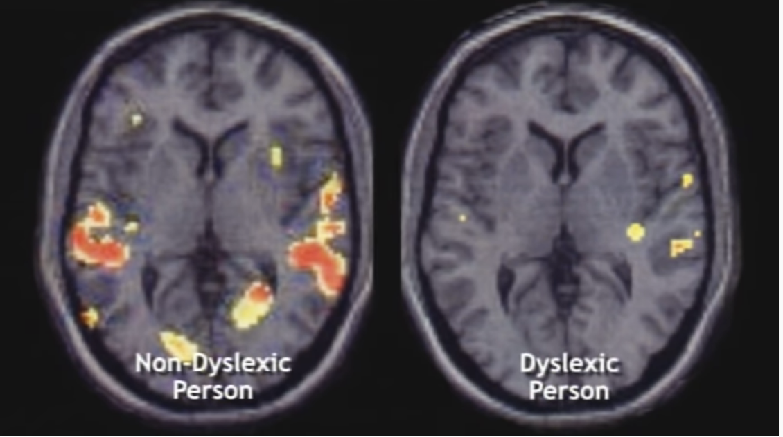 Dyslexia person vs non dyslexia person brain activity