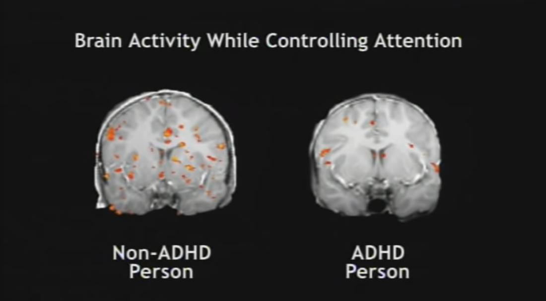 ADHD Person vs Non ADHD Person brain activity