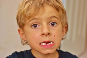 bex-missing-2-teeth-002-1024x682.jpg