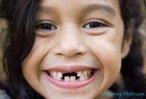 Wendy-missing-teeth-MM.jpg