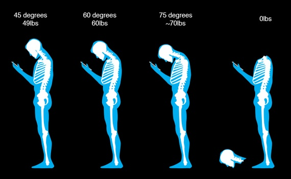 What posture are you assuming? Will there be a permanent consequence to this?