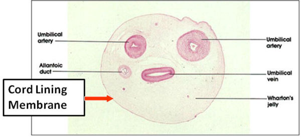 Cross Section of Human Umbilical Cord