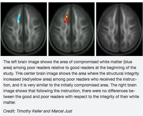 brain imaging Carnegie Melon.png