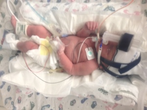 preemie, cpap, 34 weeks, 34 weeks pregnant, baby, newborn, photography,  birth story