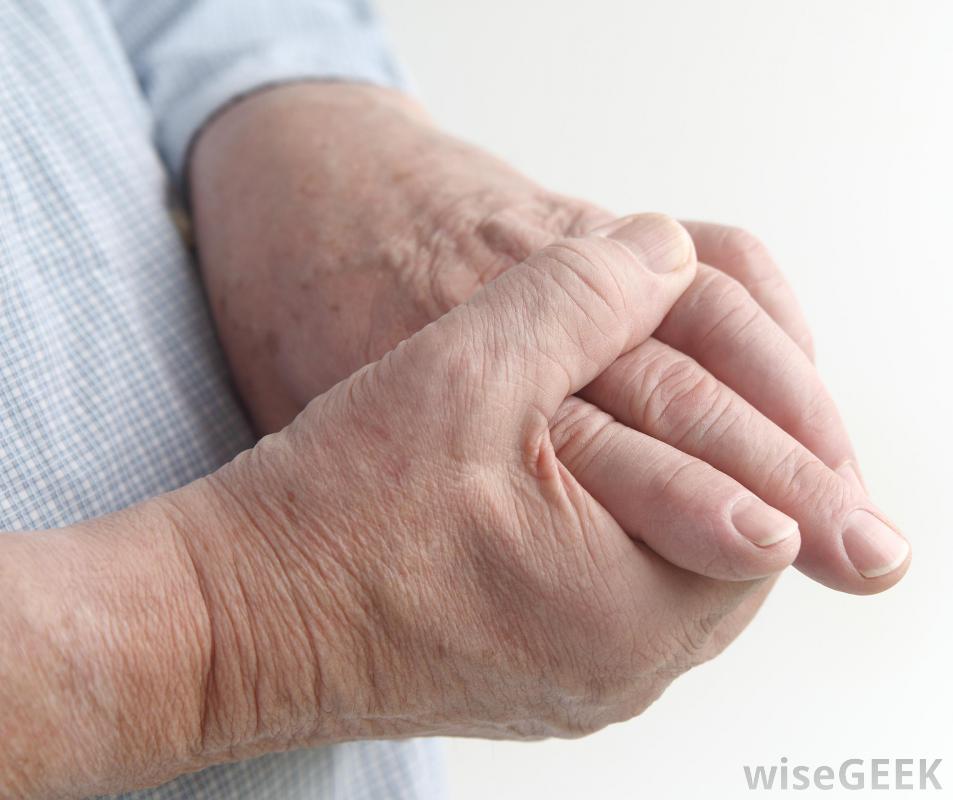 arthritis-is-hand.jpg
