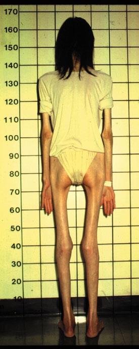 anorexic.jpeg