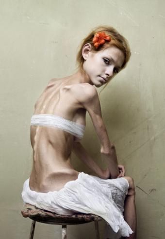 bulimia-anorexia.jpeg