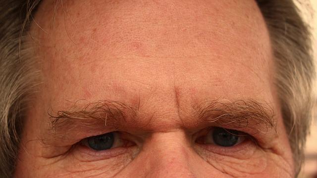 forehead-65059_640.jpg