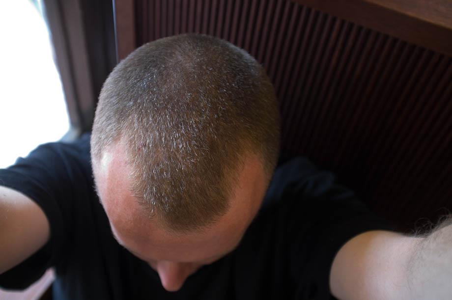 Mail Pattern Baldness