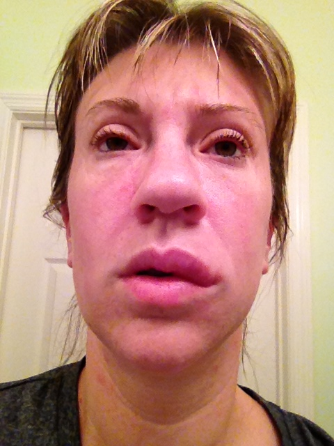 I am doing my best not to lose my mind here! This is me make up free with hives on my face.