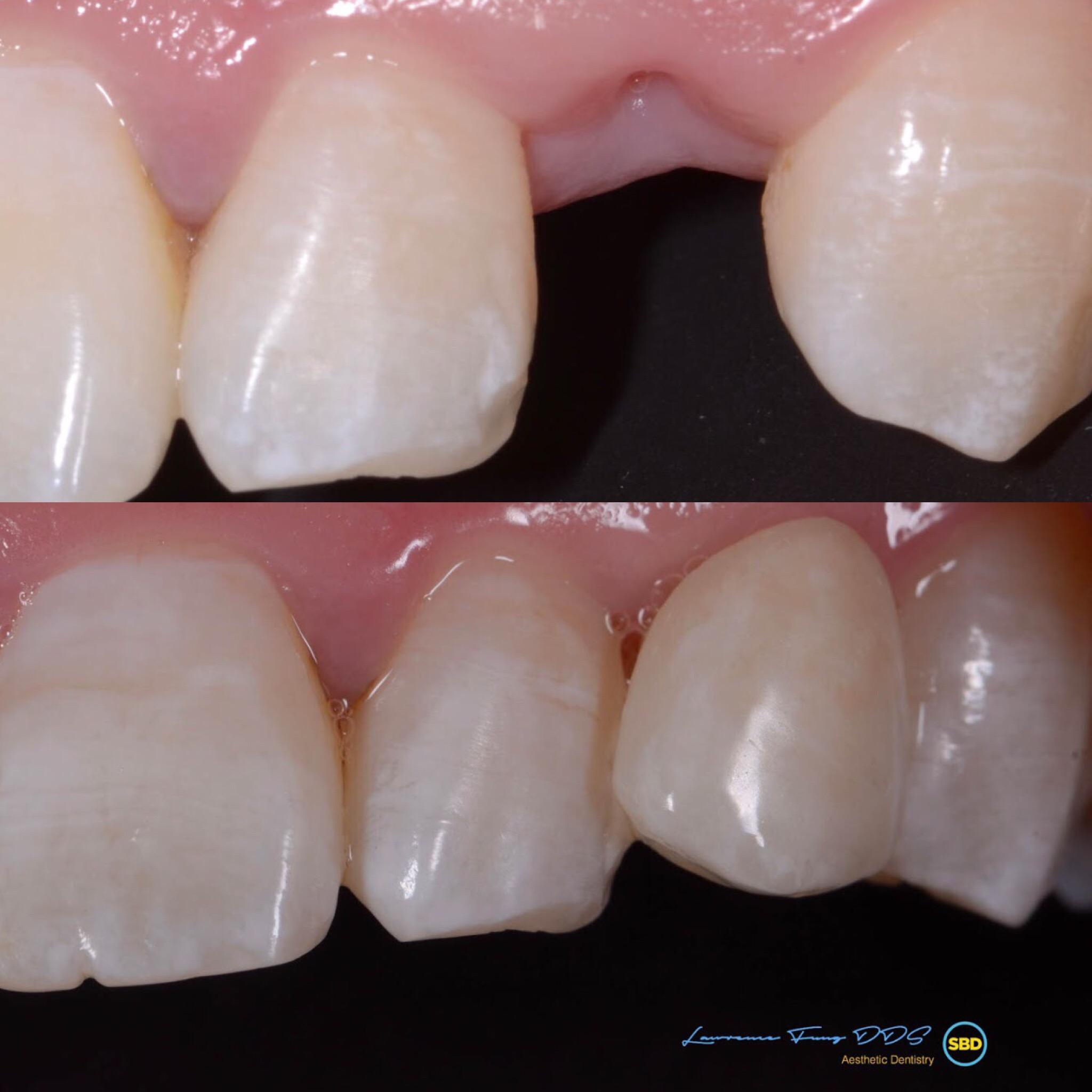 missing tooth replacement with maryland bridge