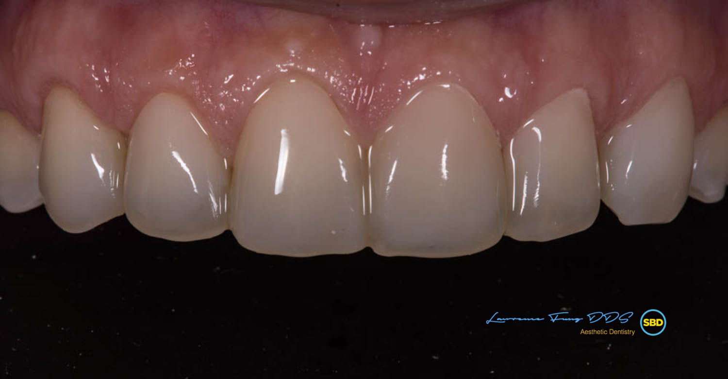 composite_veneers_lawrence_fung.jpg