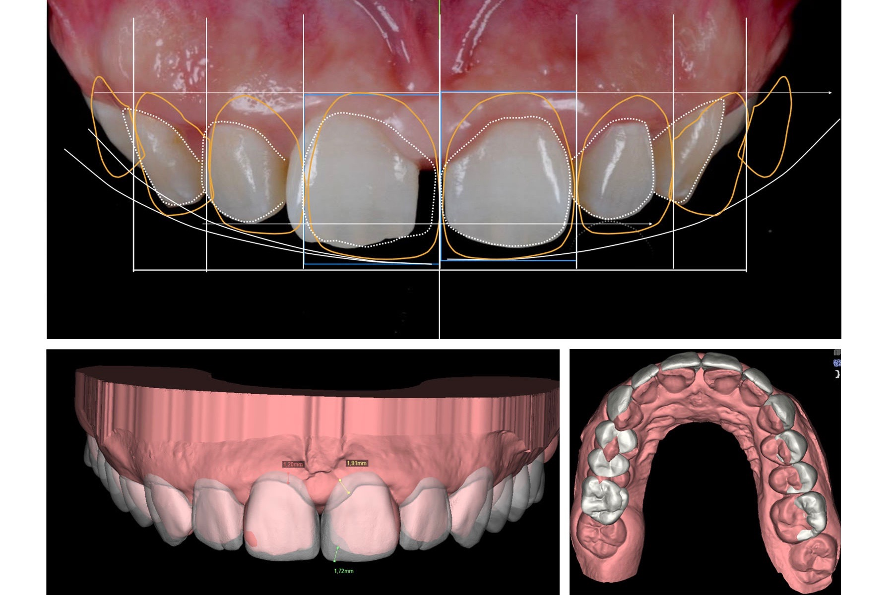 Example of a 3D scan of the patients teeth and the digital smile design mockup super imposed on the digital model.