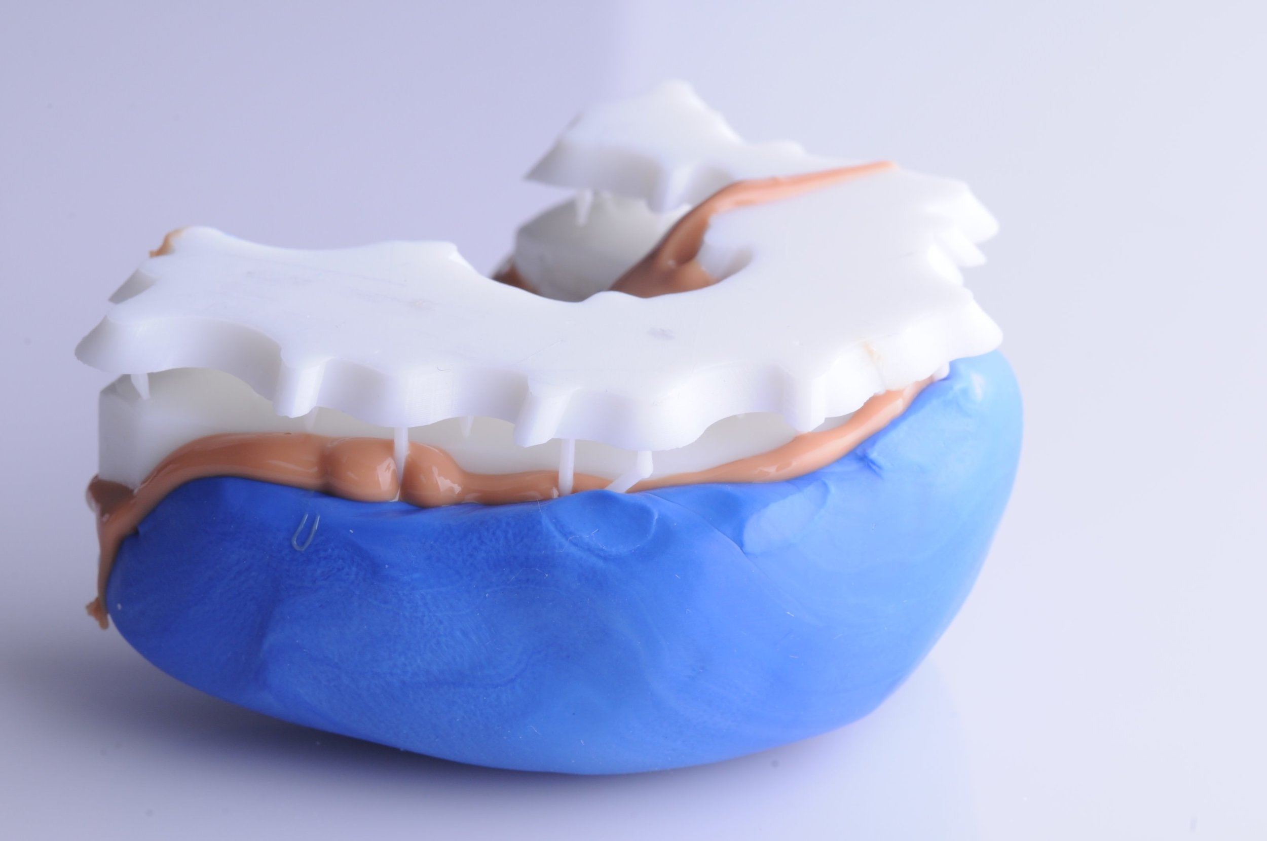 A putty impression of the 3D printed digital smile design.