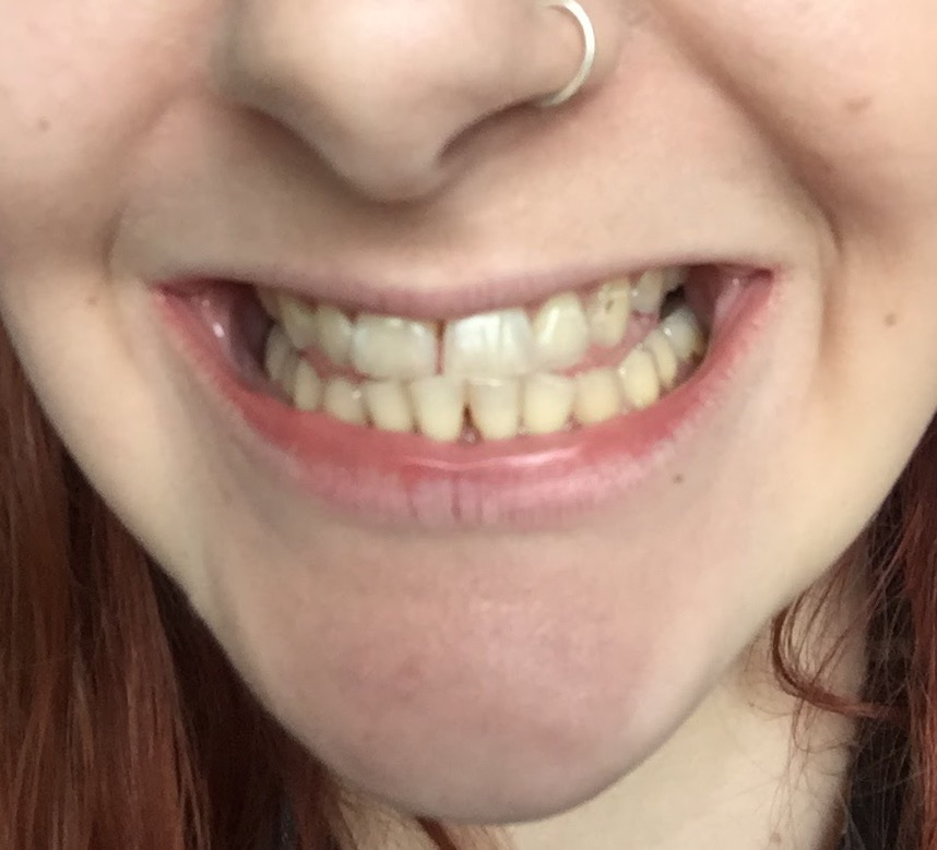 Before: It has taken a lot to get up the courage to post such an expose picture of my teeth, so I'm sort of nervous but proud of myself for doing it!