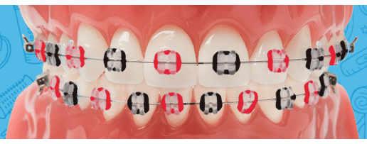 orthodontictiesonbraces
